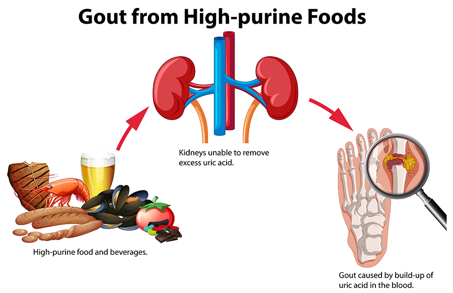 Top Foods That Trigger Gout