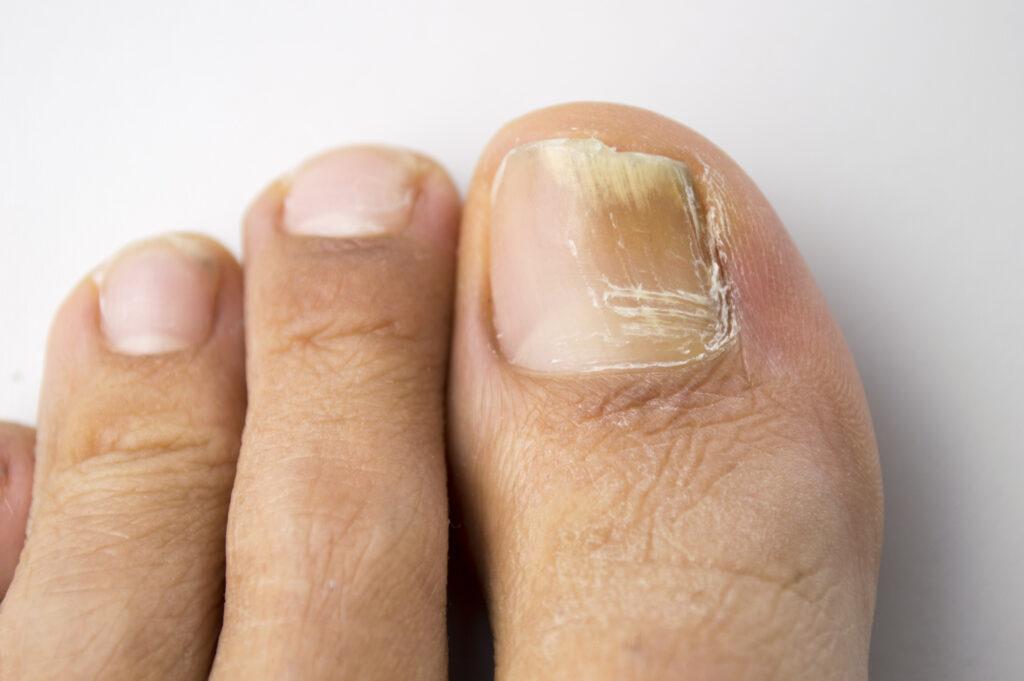 what does toenail fungus look like