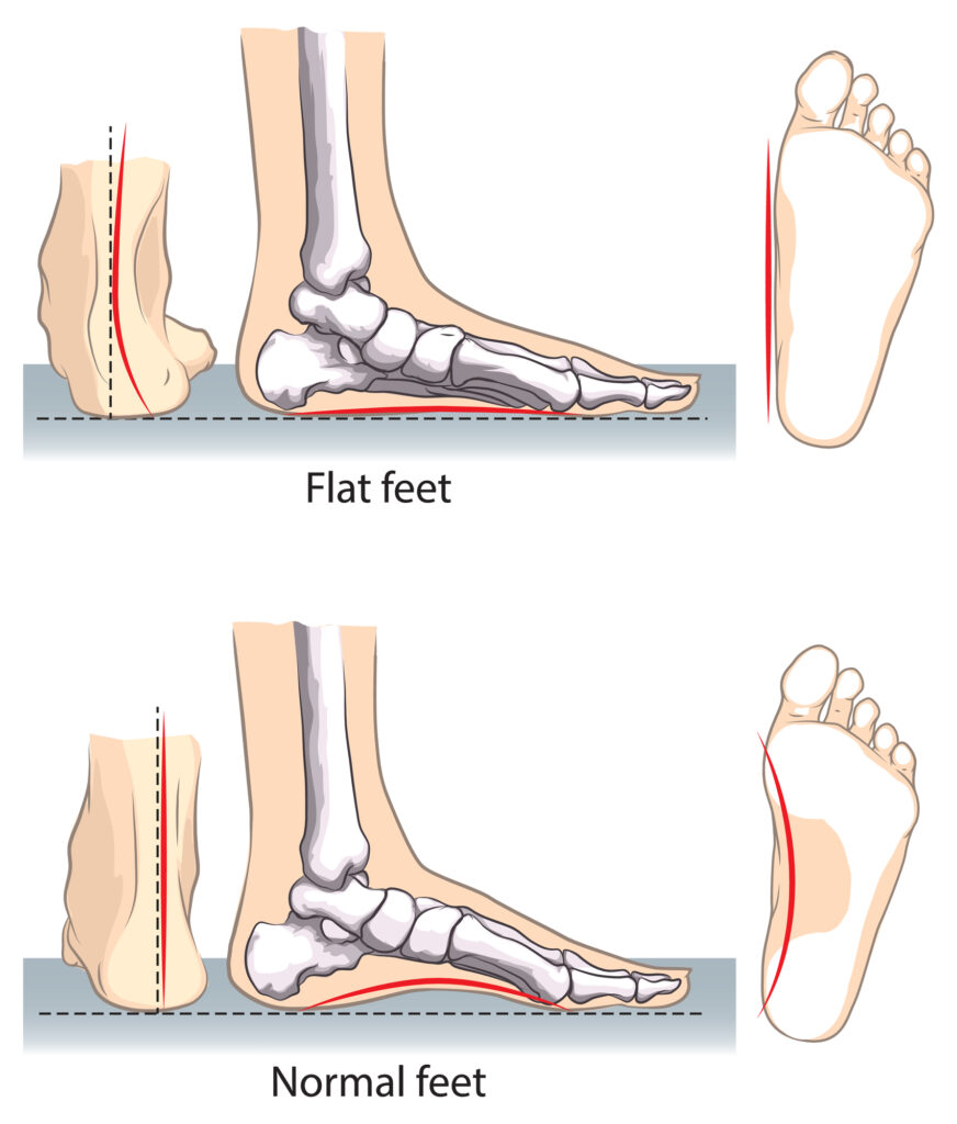 Illustrated side profile view of flat feet versus normal feet.