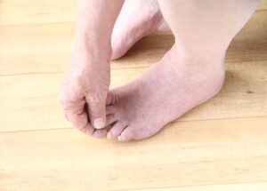 Diabetic checking foot for wounds during daily foot care routine.