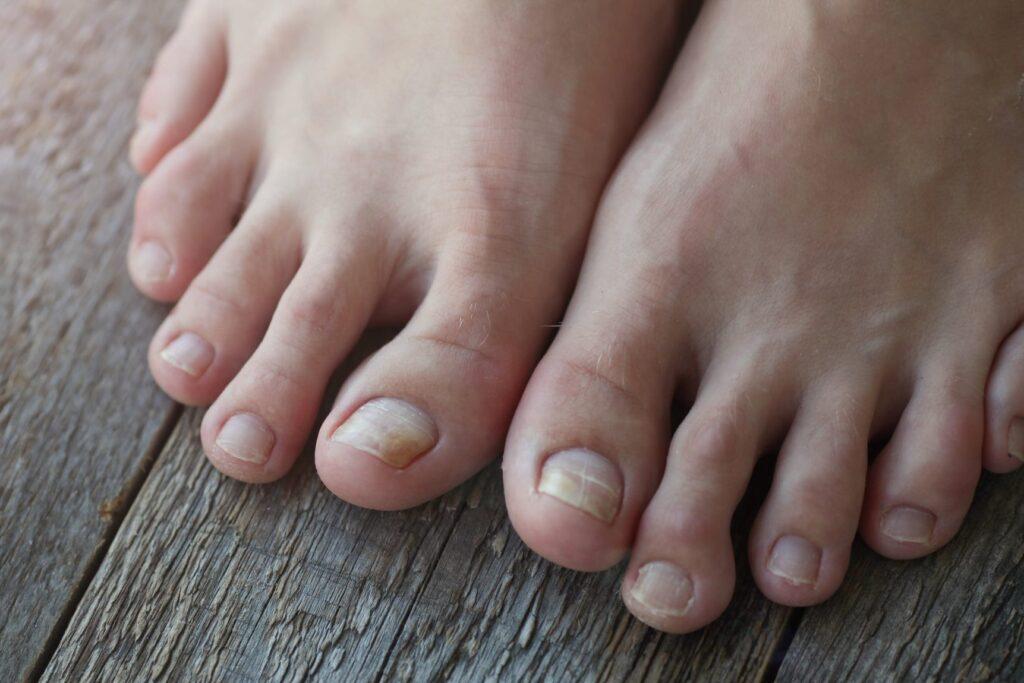 cracked and yellow toenails