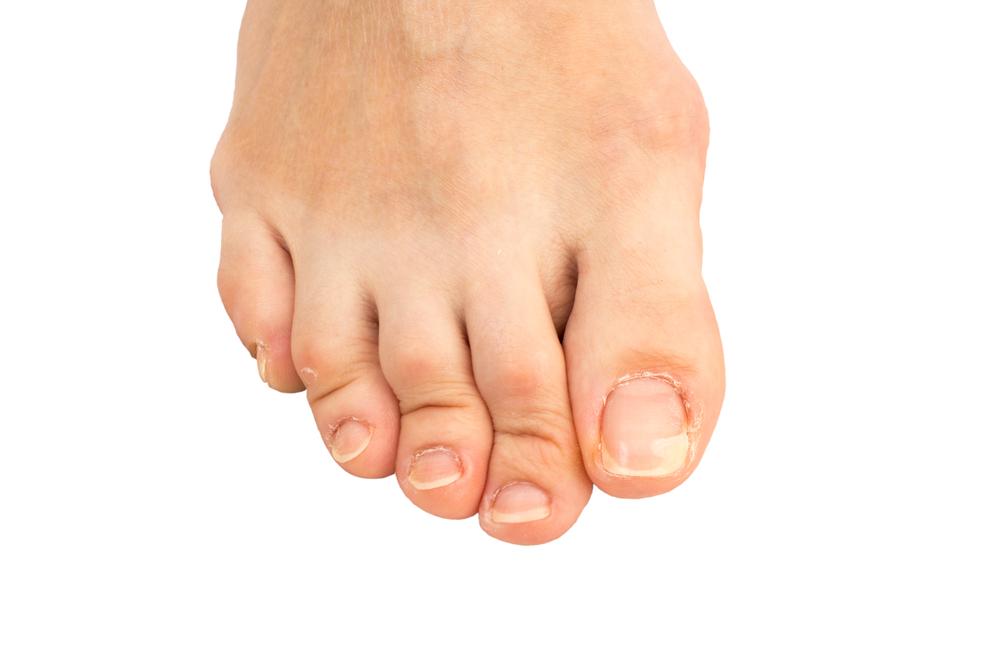 cracked and peeling toe nail