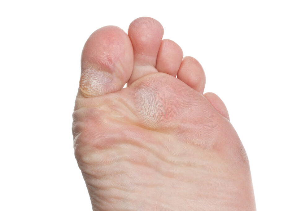 Bottom of foot with calluses on ball of foot and callus on bottom of toe