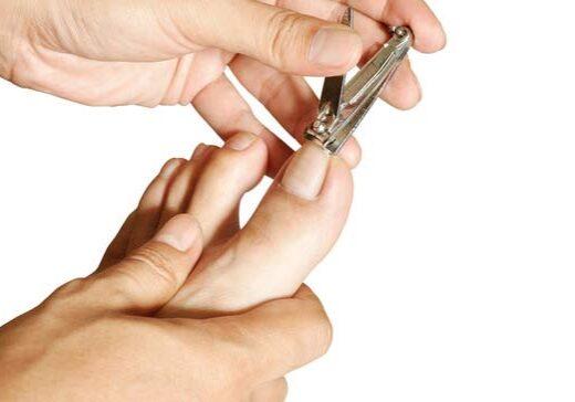 mesa-ingrown-nail-doctor