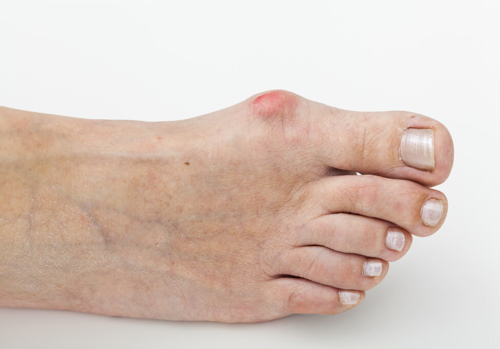 Closeup of a bunion, hallux on foot