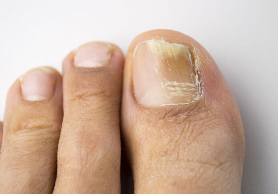 toenail fungus infection on left big toenail; what does toenail fungus look like