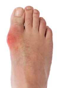 toe with gout