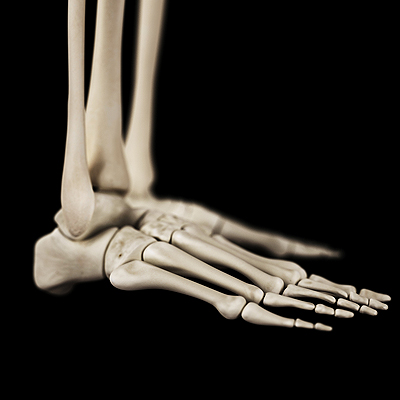 stress fractures in foot